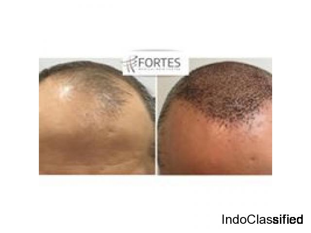 Hair Transplant Specialist in London   Fortes Clinic