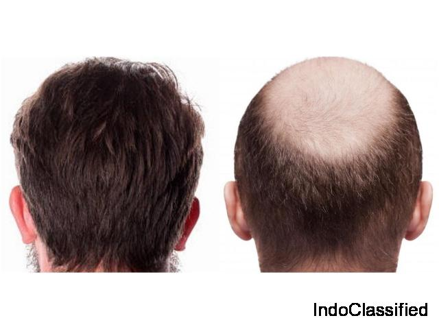 Hair Clinic - Hair Specialist, Hair transplant cost in Delhi, India