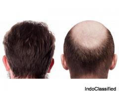 Hair Clinic - Hair Specialist, Hair transplant cost in Delhi, India