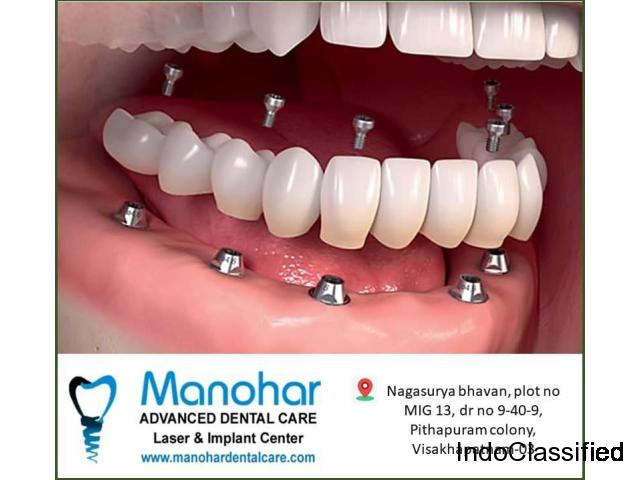 best implant clinic in visakhapatnam