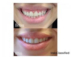 Smile Correction Treatment