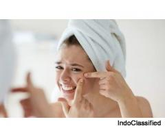 Herbal Treatment For Acne