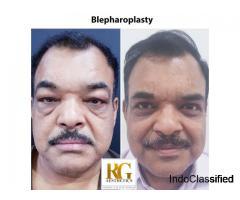 Eyelid Surgery Delhi