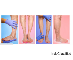 Spider Vein Removal Miami