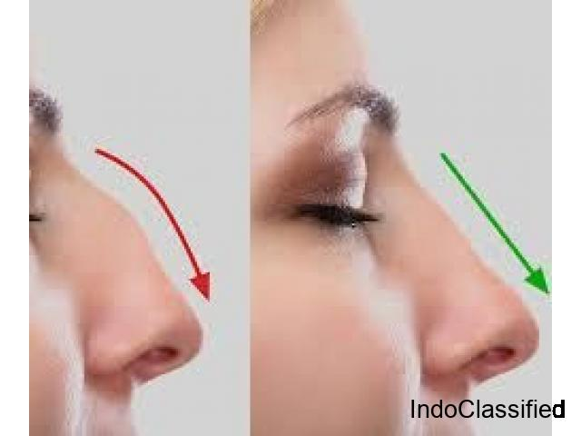 Rhinoplasty in Bangalore | Non Surgical Rhinoplasty Cost in Bangalore (Nose Job) - Anew