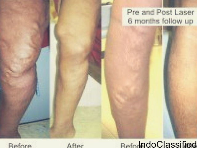 Can I be cured of my varicose veins?