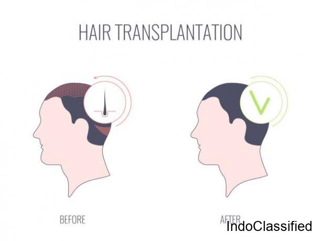 Leading and Affordable Hair Transplant Clinic in London
