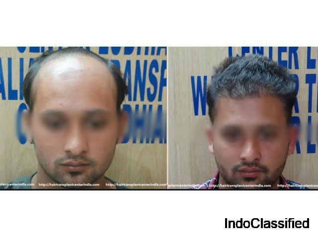 Walia Hair Transplant Clinic in Ludhiana