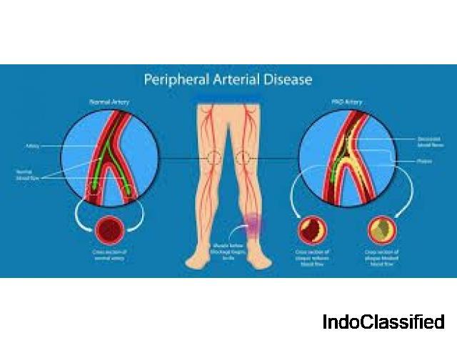 Vascular Surgeon Orange - Pedes Orange County