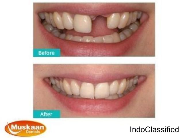 Average price for one tooth implant gurgurgaon