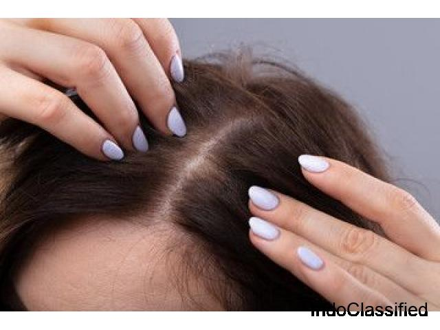 Looking For A Permanent Women Hair Fall Treatment In Noida?