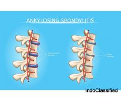 Ankylosing Spondylitis Treatment in Ayurveda