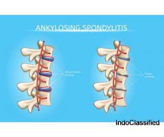 Ankylosing Spondylitis Treatment in Ayurveda