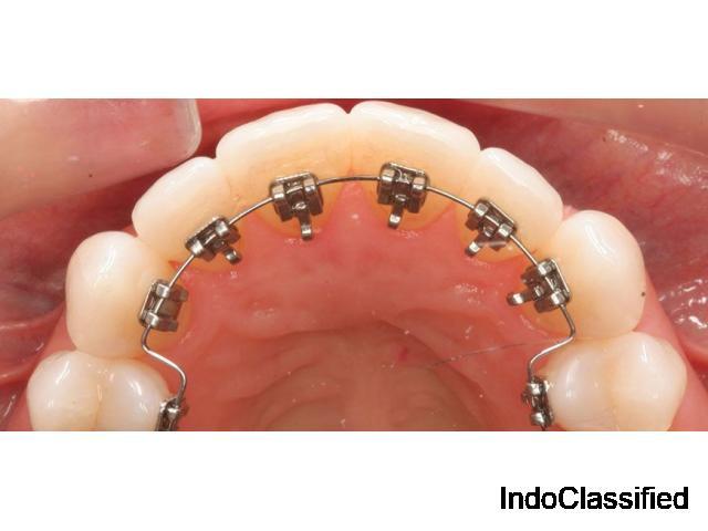 Sri Sakthi Dental Best Dental Clinic In Coimbatore