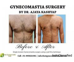 Consult the Best Gynecomastia Surgeon in Delhi