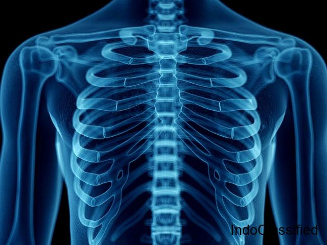 Diploma in X-Ray Technology ADMISSION, ELIGIBILITY, FEE, SYLLABUS