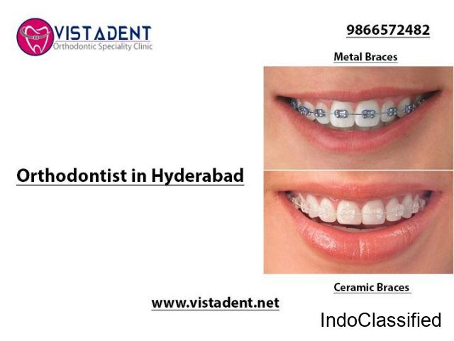 Orthodontic Treatment in Hyderabad - Vistadent