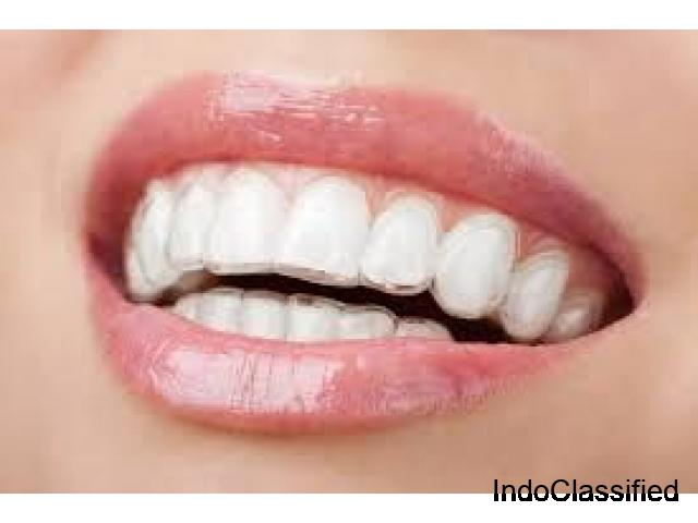 Clear Invisible Aligners - Eazyalign