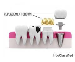 How much does a typical dental crown cost?