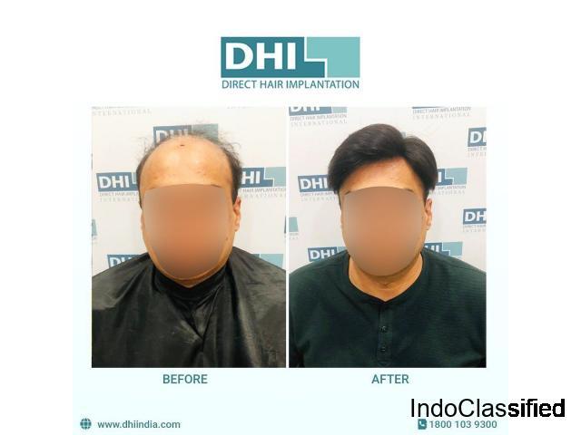 Best Hair Transplant Clinic in Delhi - 1